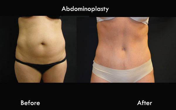 Clinic Plastic Surgery Abdominoplasty Front 600x375