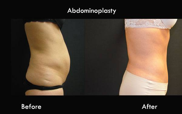 Clinic Plastic Surgery Abdominoplasty Side 600x375