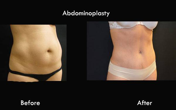 Clinic Plastic Surgery Abdominoplasty ThreeQ 600x375