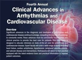 Arrhythmias Image 2017