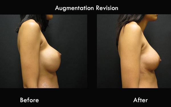 Clinic Plastic Surgery Augmentation Revision R Side 600x375