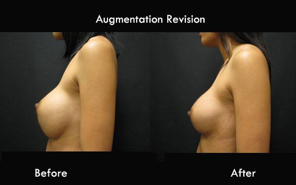 Clinic Plastic Surgery Augmentation Revision L 2 Side 600x375