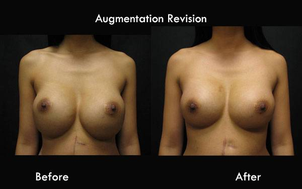 Clinic Plastic Surgery Augmentation Revision Front 600x375
