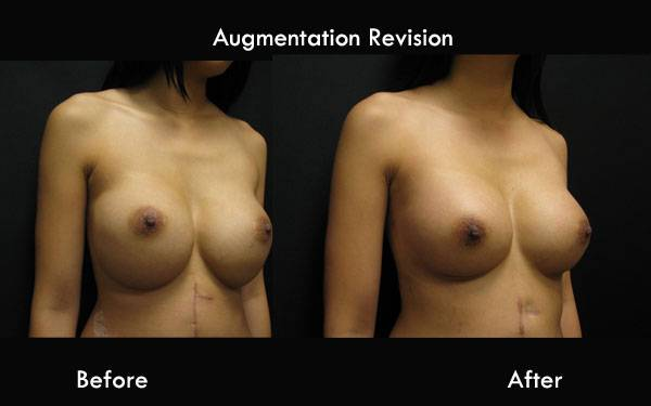 Clinic Plastic Surgery Augmentation Revision ThreeQ 600x375