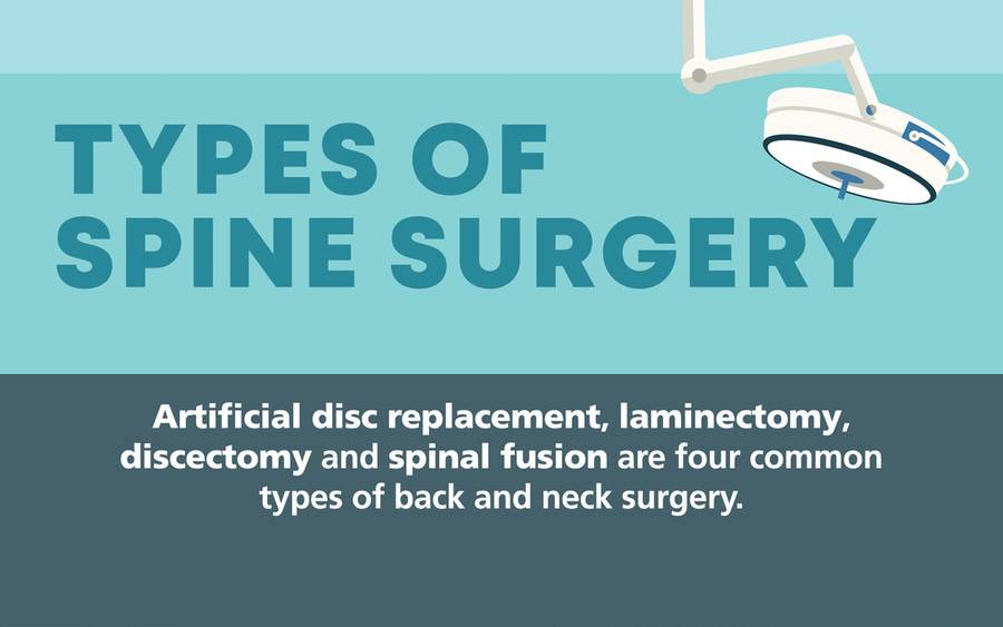 Neck and Back Surgeries Infographic JPEG