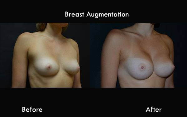 Clinic Plastic Surgery Breast Augmentation 600x375