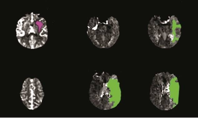Advanced imaging is helping patients recover from massive strokes