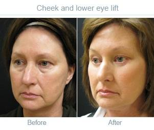 Cheek lift pre and post photo