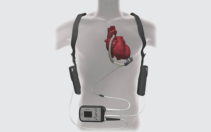 An image of the LVAD device connected to the heart in a body.