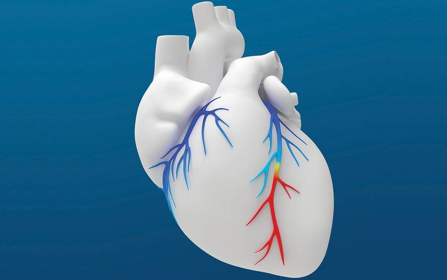 The HeartFlow FFRct Analysis is a non-invasive tool used by Scripps La Jolla cardiologists to identify blockages.