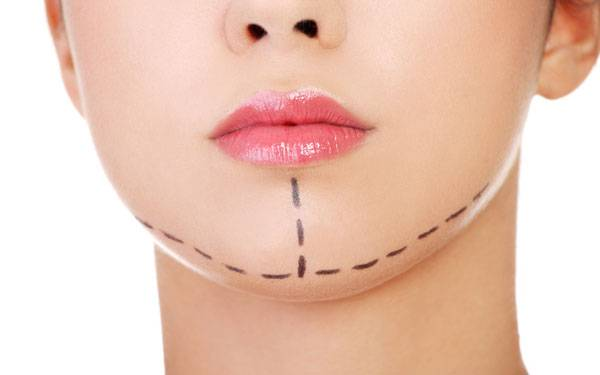 """Is the """"lunchtime facelift"""" or thread lift the best choice for you?  Treatment options to consider for a drooping chin or jowls."""