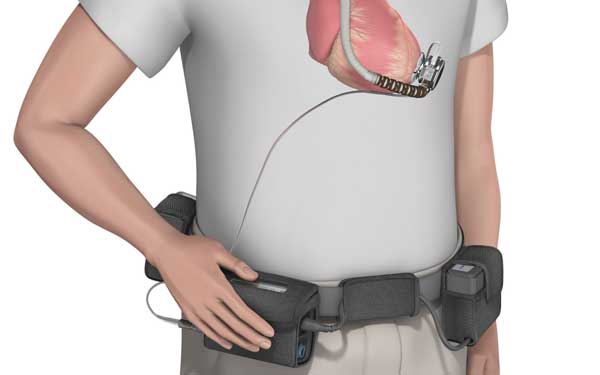 Illustration of LVAD carrying case