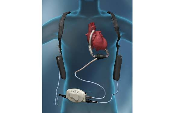 LVAD Information Session