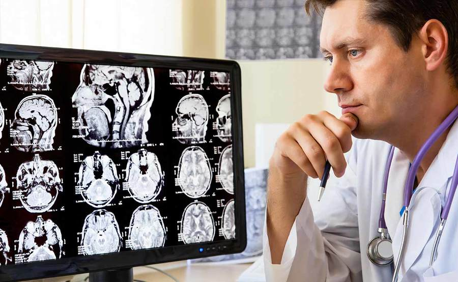 A neurologist reviews brain scans on a monitor, representing the clinical expertise and advanced technology used for treating neurological disorders at Scripps.