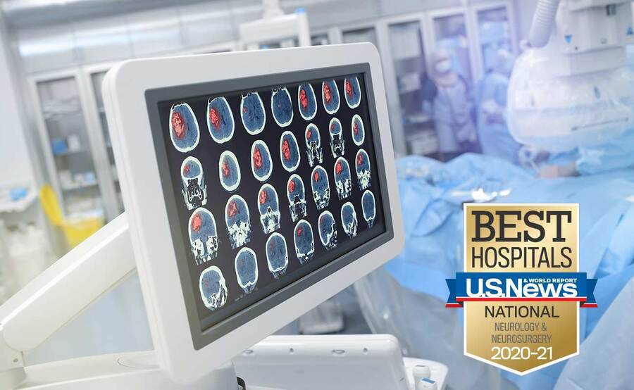 A computer screen shows brain scan images, representing the high-tech approach to neurosurgery at Scripps.