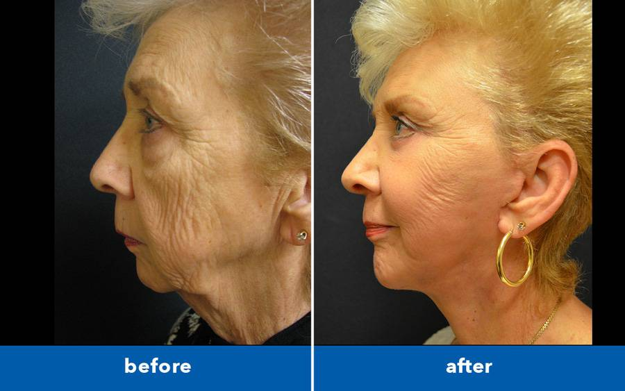 Older woman looks younger after plastic surgery to fix sagging neck skin.