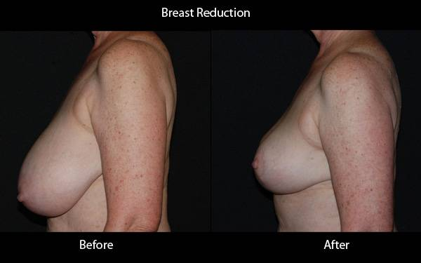 Clinic - Breast Reduction Pt 2 Side