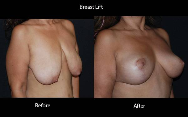 Clinic - Breast Lift Side