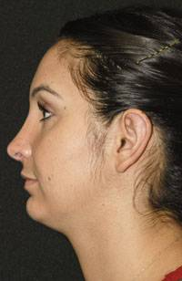 Rhinoplasty Post Left