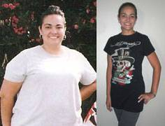Sabrina's BMI dropped to 25 from 40 after having laparoscopic gastric bypass surgery.