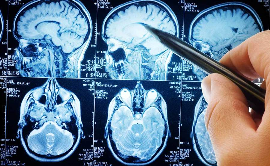 A person points to a brain scan, representing the quality data for the stroke program at Scripps.