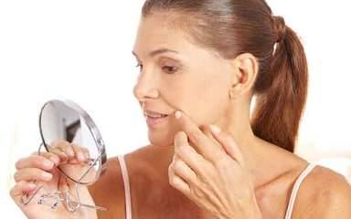 Treatment suggestions to make acne scars look less conspicuous.