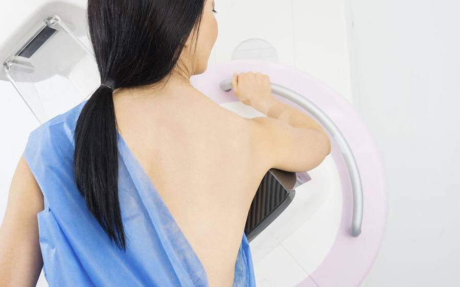 A woman stands in front of a mammography machine.